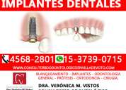 Implantes dentales para villa devoto