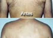 depilacion masculina zona caballito