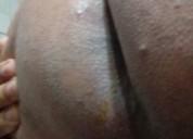 Busco maduro de pene normal