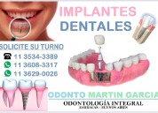 Implantes dentales inmediatos titanio oseointegrad