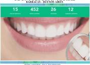 Ortodoncia brackets estéticos