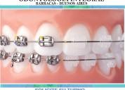 Ortodoncia brackets estéticos transp. cerámic zafi