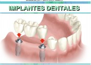 Implantes dentales inmediatos titanio