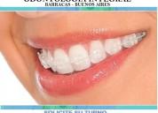 Invisalign ortodoncia brackets estéticos cerámicos