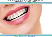 Ortodoncia brackets estéticos invisalign cerámicos
